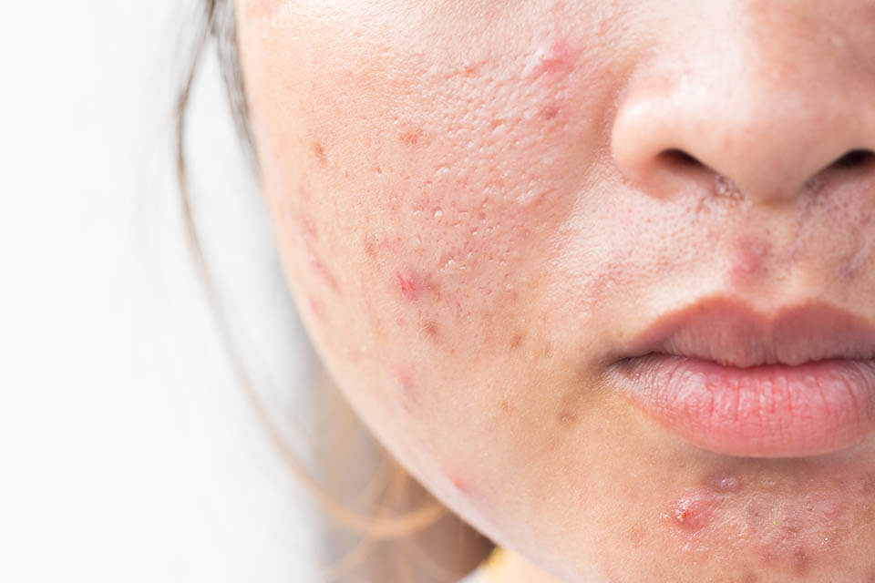 acne bacteria - using probiotics to get rid of acne