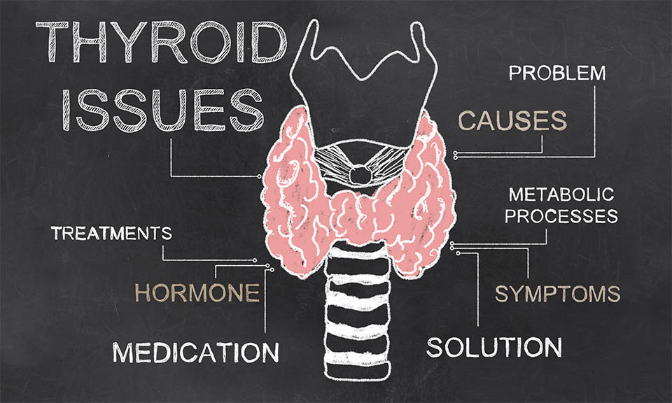 thyroid conditions